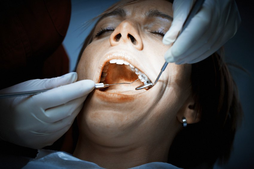 Have more than eight dental fillings?